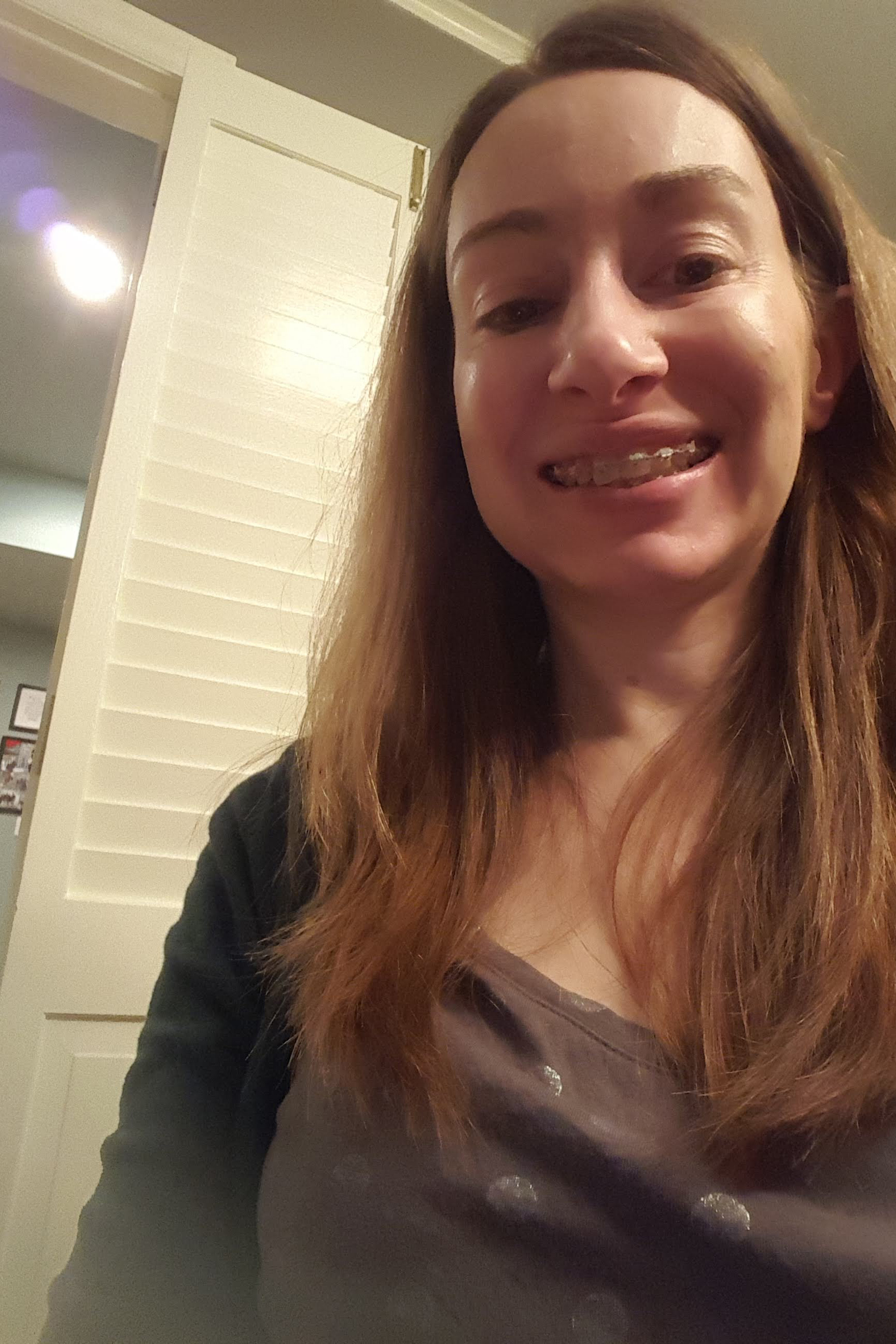 Braces as an Adult Progress, Month 23 | https://www.roseclearfield.com