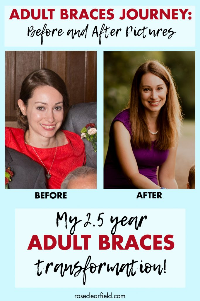 Adult Braces Journey Before and After Pictures